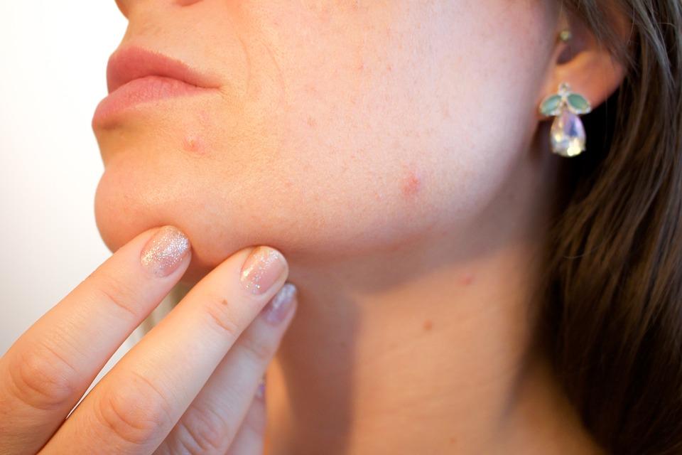 acne-1606765_960_720
